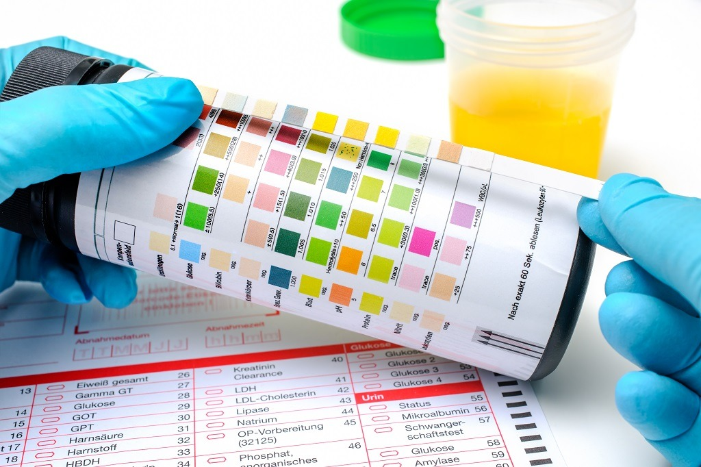 Are results from fake synthetic urine reliable?